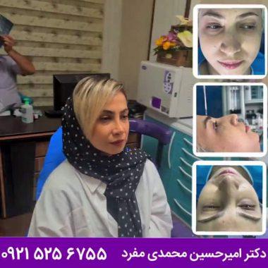 مشاوره قبل از عمل زیبایی بینی