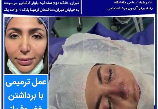 عمل جراحی ترمیم بینی (جراحی ثانویه بینی)