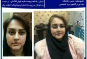 عمل زیبایی بینی ، دکتر محمدی مفرد