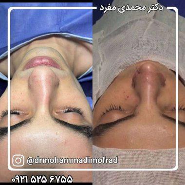 جراحی بینی و شکستگی بینی