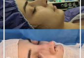 بعد از جراحی بینی چه کارهایی نکنیم