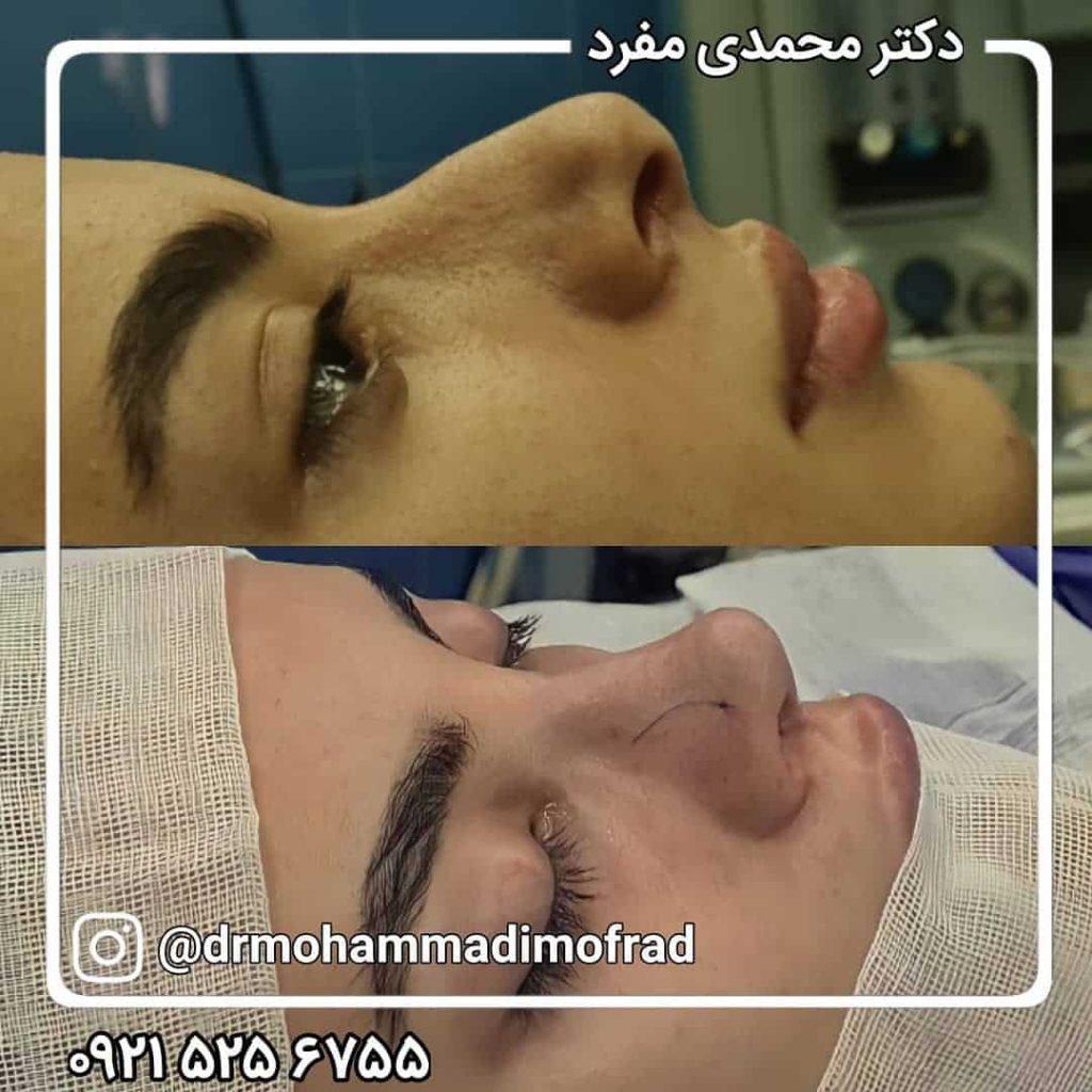 بهترین جراح بینی در تهران با نمونه کار + عمل بینی اقساط